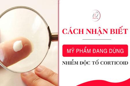 cach-nhan-biet-my-pham-chua-corticoid